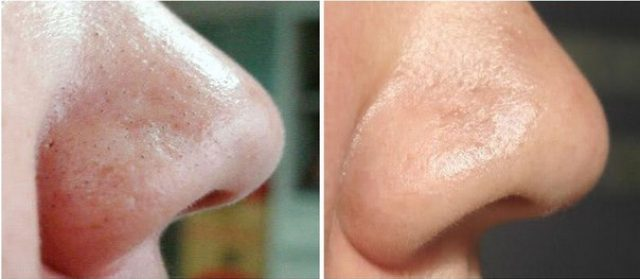 Применение маски от чёрных точек: до и после