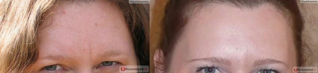 Фото до и после применения Зинерита