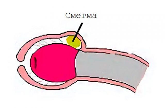 Схема полового члена