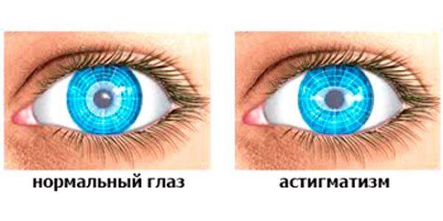Нормальный глаз и астигматизм