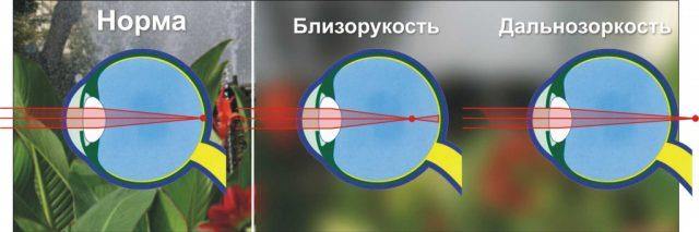Глаз с нормальным зрением, близорукостью и дальнозоркостью