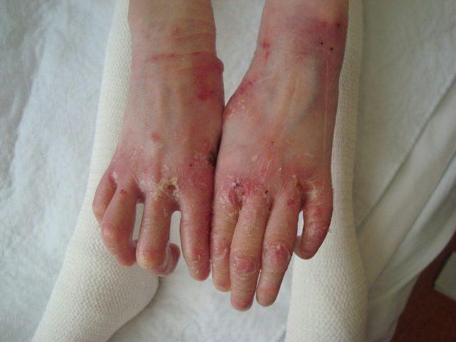 Буллезный эпидермолиз