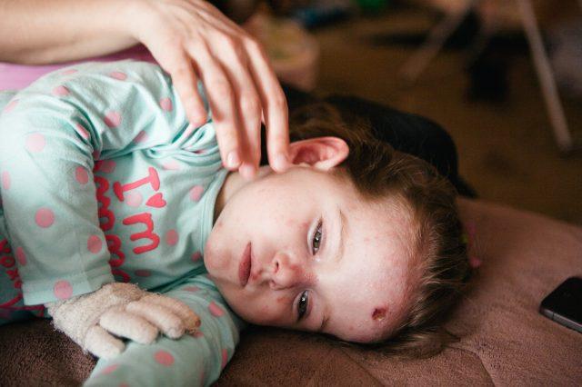 Девочка с буллезным эпидермолизом