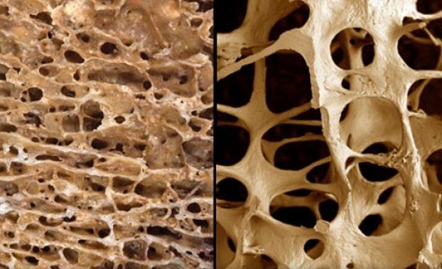 Пористые кости больных