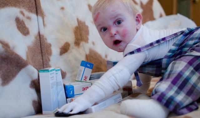 Ребенок с буллезным эпидермолизом