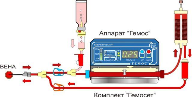 Аппарат для гемосорбции «Гемос»