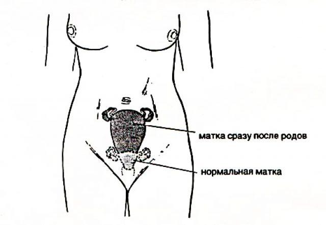 Матка до и после родов