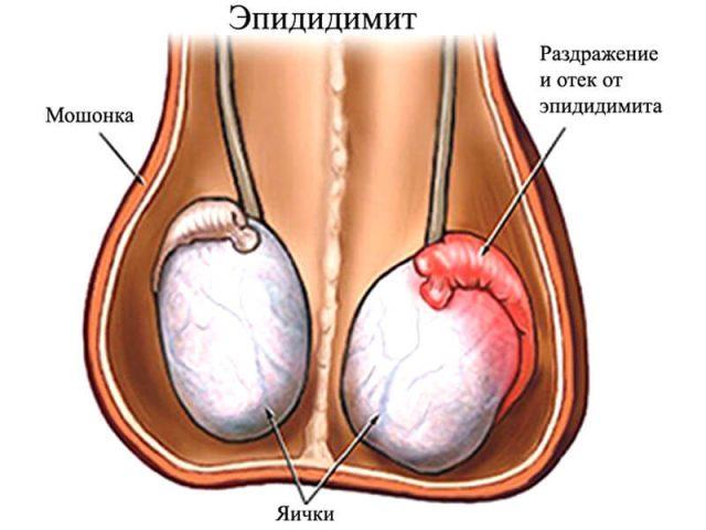 Схема: здоровое и воспалённое яички