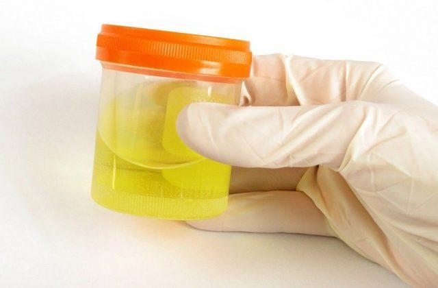 Рука в белой медицинской перчатке держит контейнер с общим анализом мочи