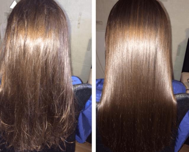 Слева фото без ботокса, справа — после его применения