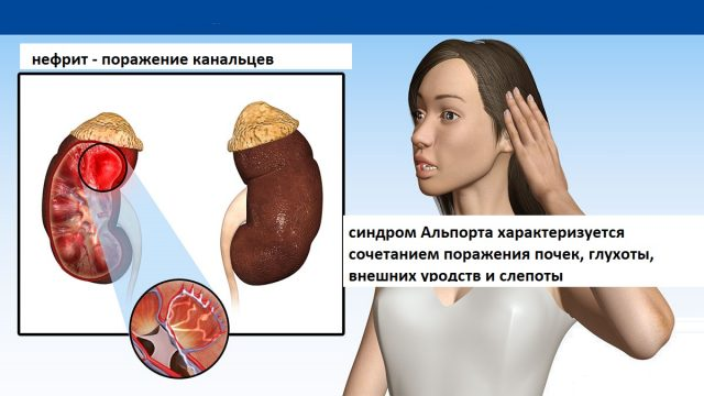 Схема развития синдрома Альпорта