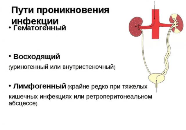 Пути проникновения бактерий в почку