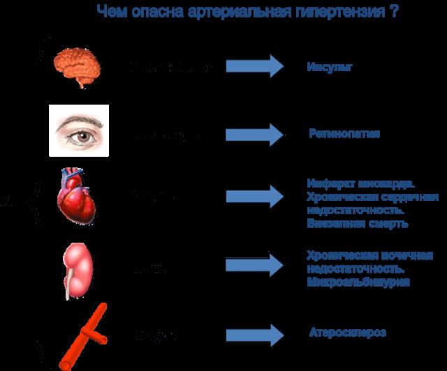Гипертоническая болезнь (схема)