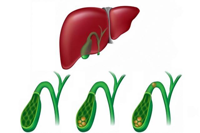 Желчнокаменная болезнь (схема)