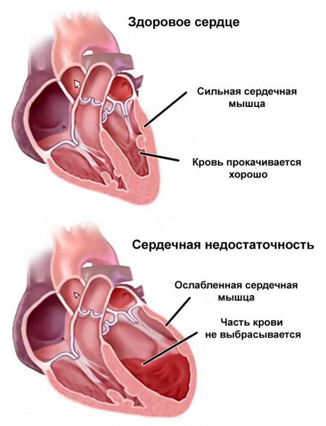 Сердечная недостаточность (схема)