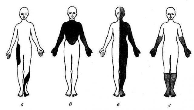 Схема расстройств чувствительности