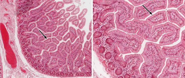Кишечные ворсинки (картина под микроскопом)