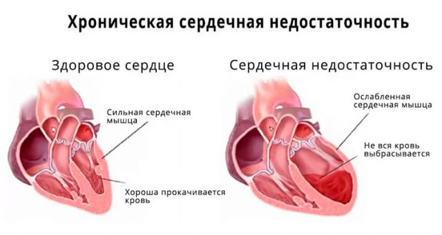 Хроническая сердечная недостаточность (схема)