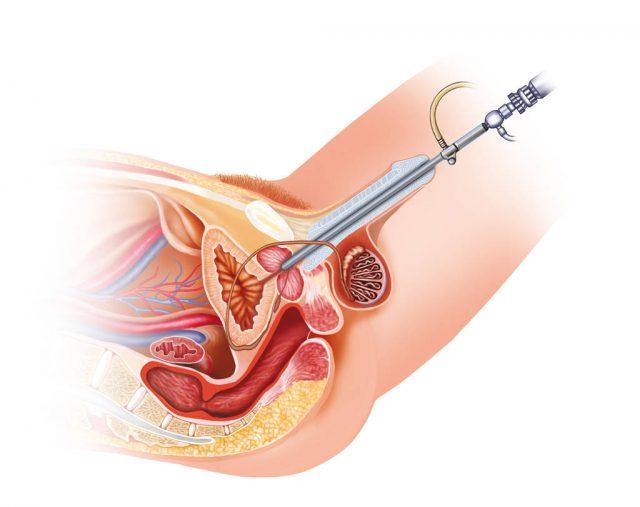 Эндоскопия уретры
