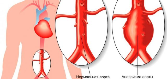 Аневризма аорты (схема)