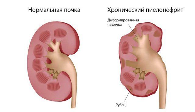 Пиелонефрит (схема)