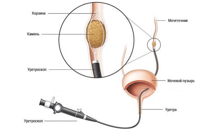 Процедура трасуретральной контактной литотрипсии (схема)