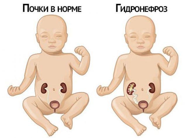Гидронефроз у плода