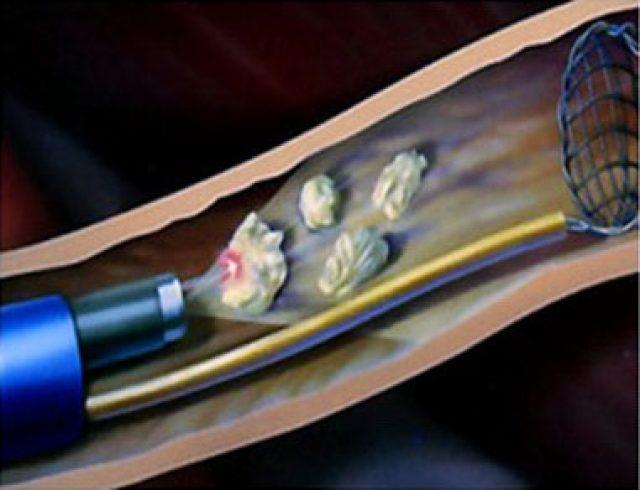 Дробление и удаление камней при уретероскопии