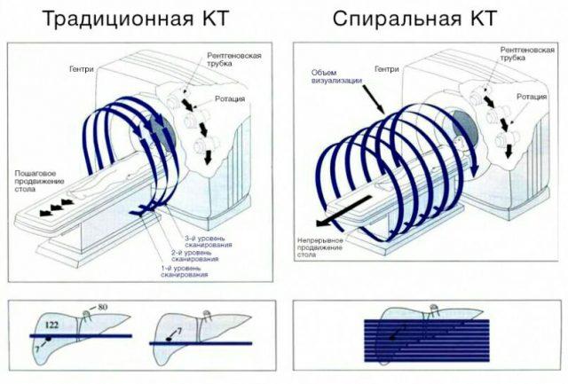 КТ спиральная и пошаговая (схема)