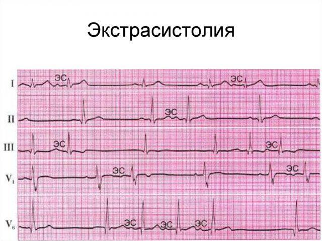 Экстрасистолия (ЭКГ)