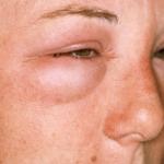 Почечные отёки на лице
