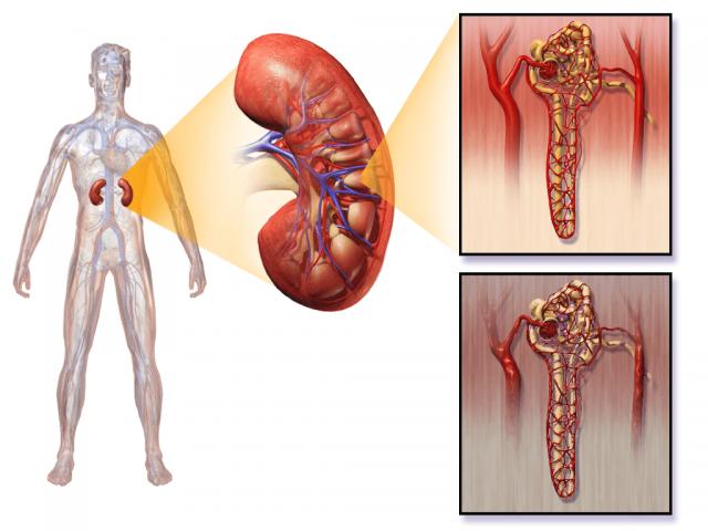 Что происходит с клубочками при диабетической нефропатии