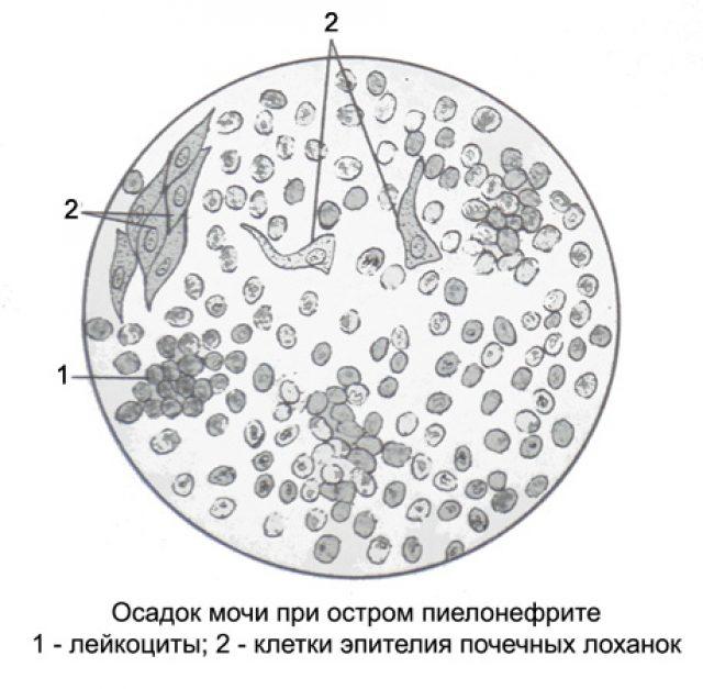 Лейкоциты в осадке мочи под микроскопом (схема)