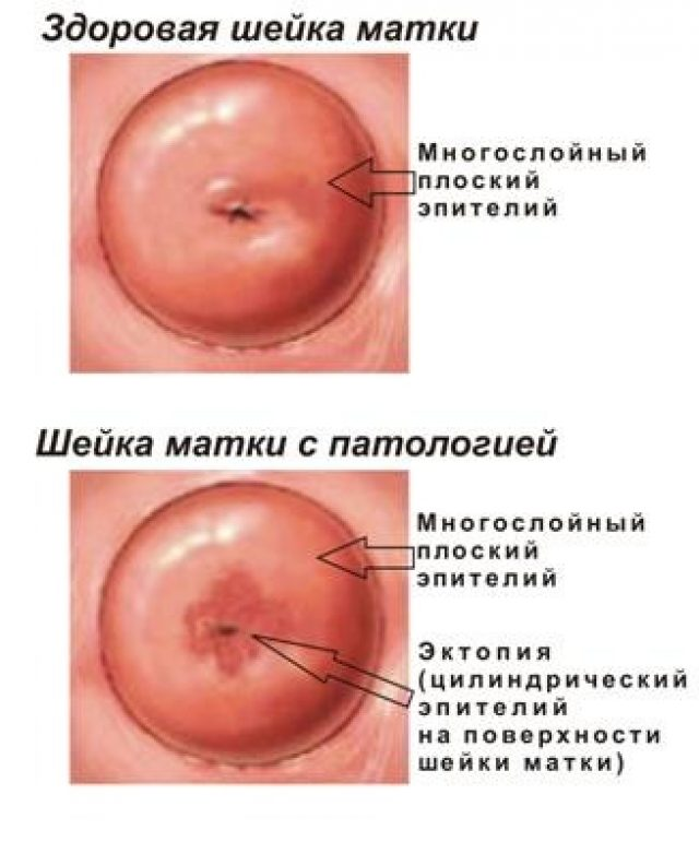Шейка матки здоровая и с патологией