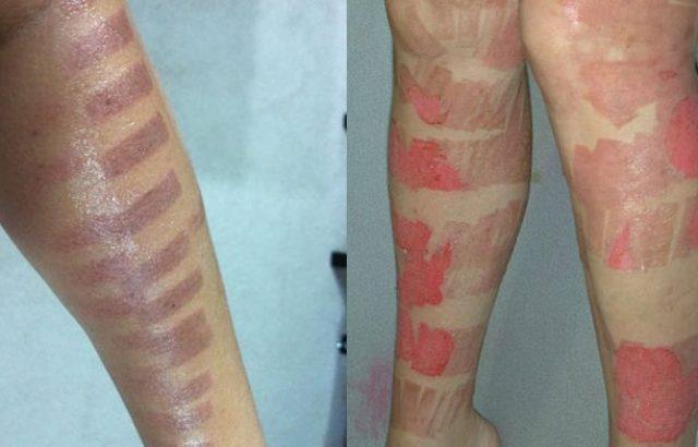 Ноги в ожогах после фотоэпиляции