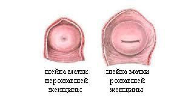 Шейка матки рожавшей и нерожавшей женщины