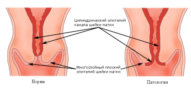 Нормальная шейка матки и патология
