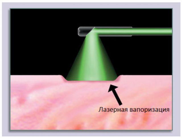 Лазерная вапоризация