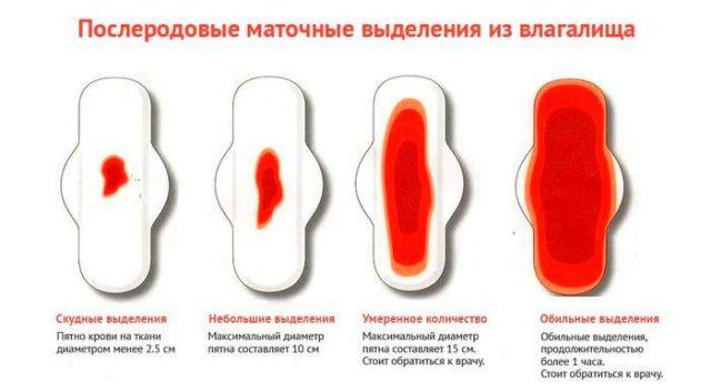 Четыре примера интенсивности лохий