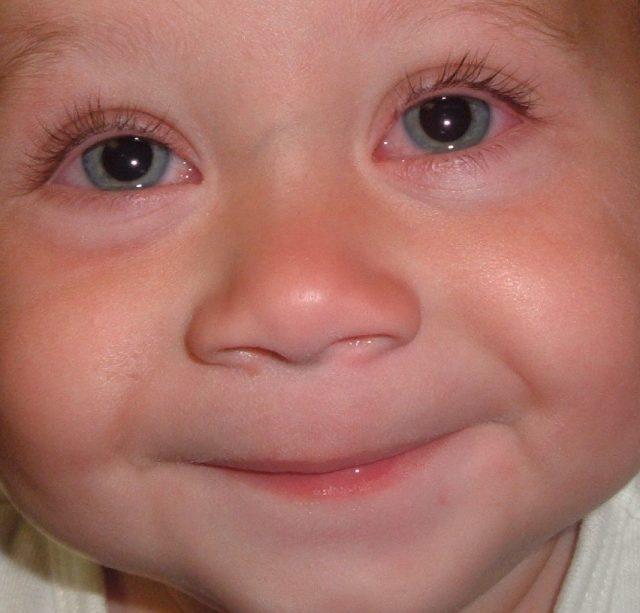Ребёнок с аллергическим конъюнктивитом