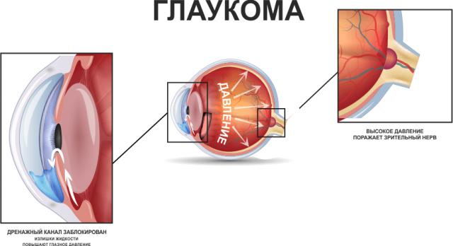 Глаукома (схема)