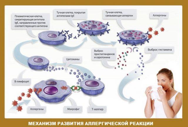 Механизм развития аллергических реакций (схема)