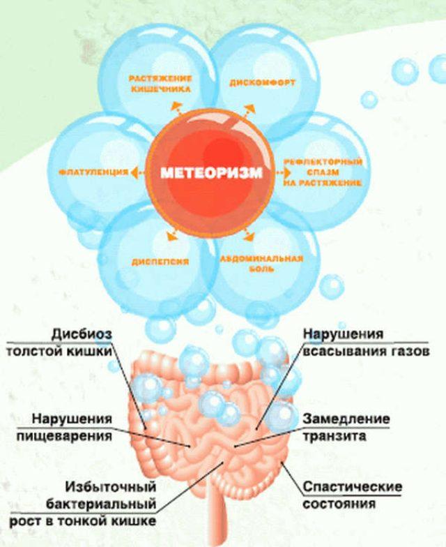 Метеоризм (схема)