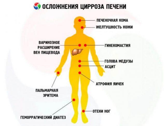 Симптомы цирроза печени (схема)
