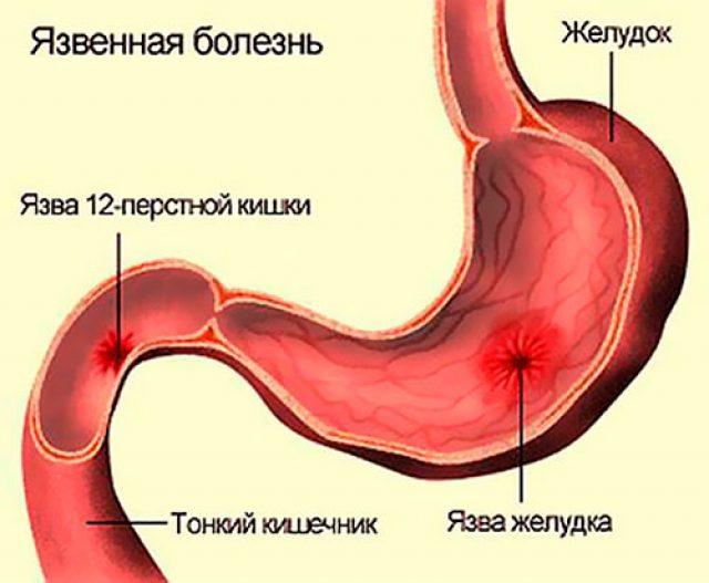 Язвы желудка и кишечника