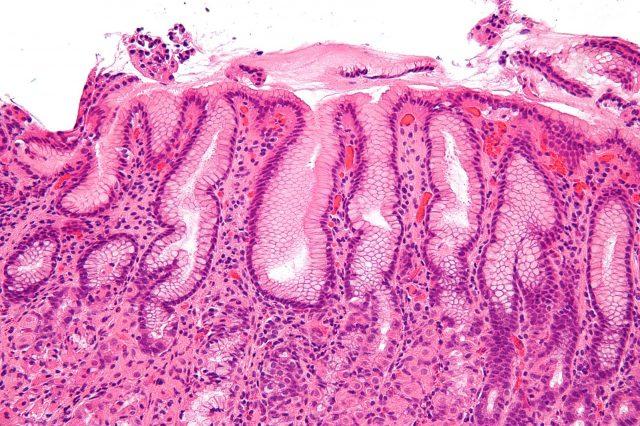 Слизистая желудка под микроскопом