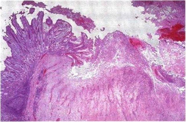 Язва желудка (картина под микроскопом)