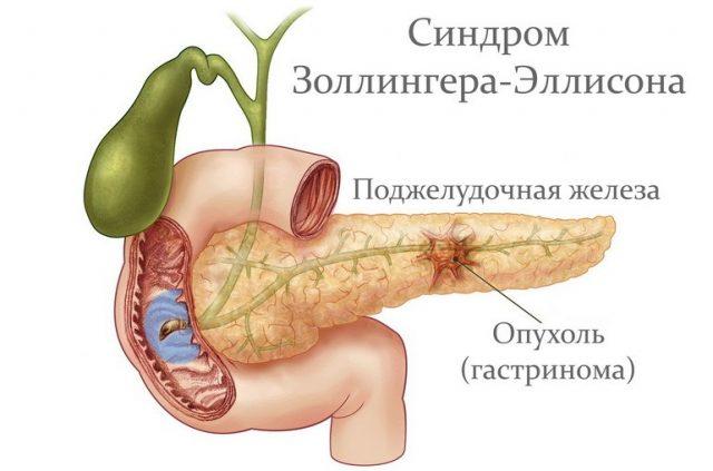 Синдром Золлингера-Эллисона (схема)