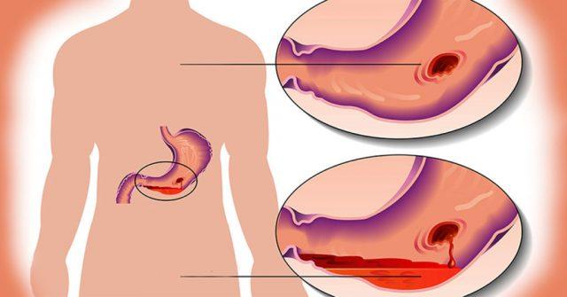 Язвенное кровотечение (схема)