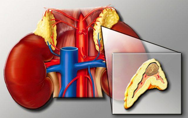Феохромоцитома (схема)